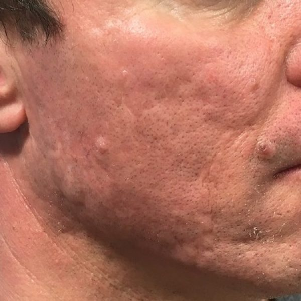 Acne Scar Treatment - After sq