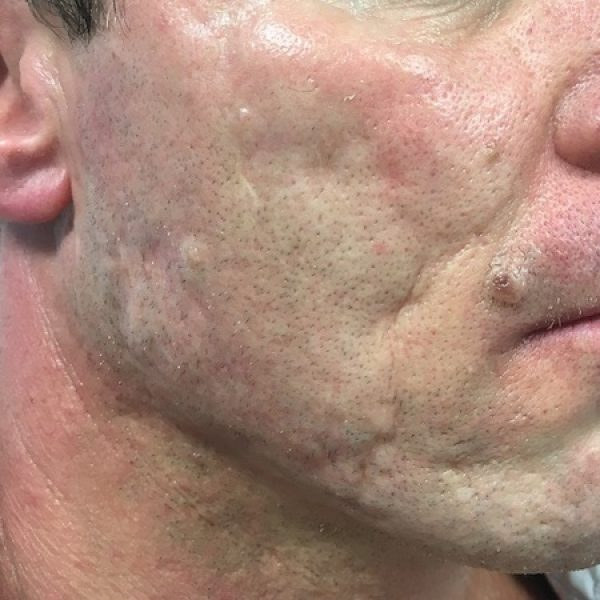Acne Scars Treatment - Before sq