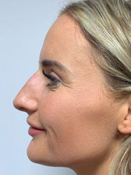 rhinoplasty after 43
